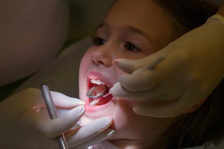 odontologo: Niña en la oficina de los dentistas pediátricos, siendo examinado por su dentista. La prevención temprana, oral concepto de higiene y cuidado de los dientes de leche.