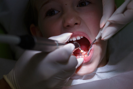 prophylactic: Little girl at paediatric dentists office, getting her teeth polished with prophylactic paste by her dentist. Early prevention, oral hygiene, fear of dentist and milk teeth care concept.