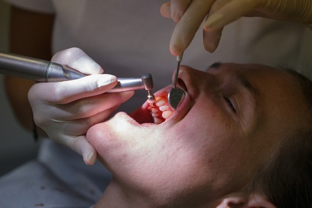 dental: Patient at dental hygienists office, getting teeth cleaned and polished with prophylactic paste, preventing caries and periodontal disease. Dental hygiene, dental procedures and prevention concept.