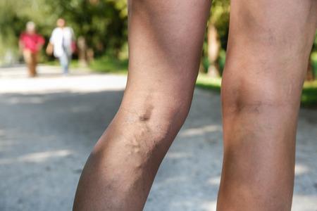 밖으로 활동 및 작업입니다 여자 다리에 고통스러운 정맥류와 거미 정맥, 고통을 극복 자신을 스스로 돕는. 백그라운드에서 두 개의 활성 노인. 혈관