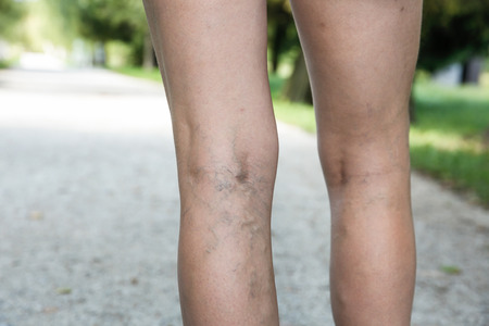 spider: Painful varicose and spider veins on womans legs, who is active and working out, self-helping herself in overcoming the pain. Vascular disease, varicose veins problems, active life concept. Stock Photo