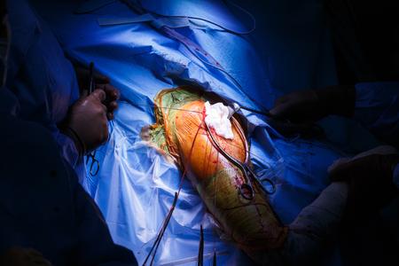 and shoulders: Cirugía de hombro real en curso, con el tapón en la herida quirúrgica e hilo quirúrgico en el borde de la misma. Lesiones, ortopedia y el concepto de atención médica.