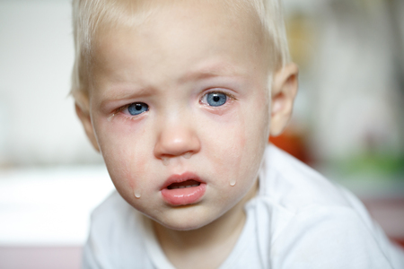 Small, crying toddler in pain with inflamed eyes. Childhood illnesses, clumsy phase, hard parenthood concept. Foto de archivo