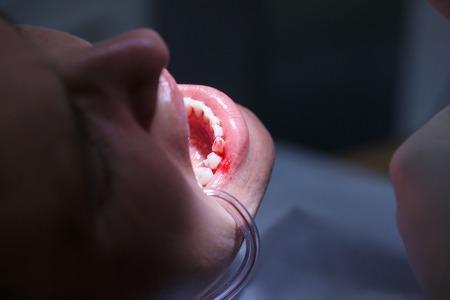 Patient at dental hygienists office, getting teeth cleaned of tartar and plaque, bleeding, preventing periodontal disease.
