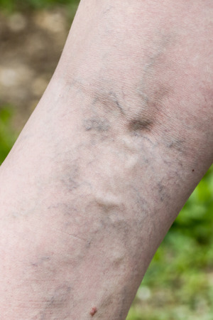 ulceration: Woman with painful varicose and spider veins on her legs. Vascular disease, varicose veins problems, painful unaesthetic medical condition concept.