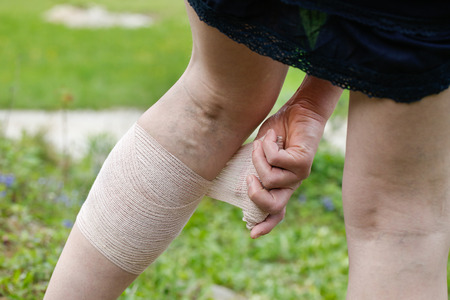 ulceration: Woman with painful varicose and spider veins on her legs, applying compression bandage, self-helping herself.