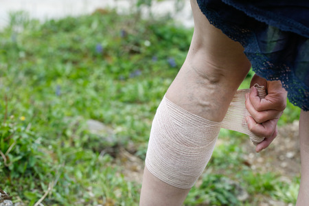 vein: Woman with painful varicose and spider veins on her legs, applying compression bandage, self-helping herself. Vascular disease, varicose veins problems, painful unaesthetic medical condition concept.