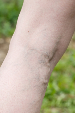 varicose veins: Woman with painful varicose and spider veins on her legs. Vascular disease, varicose veins problems, painful unaesthetic medical condition concept.