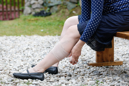 ulceration: Woman with painful varicose and spider veins on her legs, applying compression bandage, self-helping herself. Vascular disease, varicose veins problems, painful unaesthetic medical condition concept.