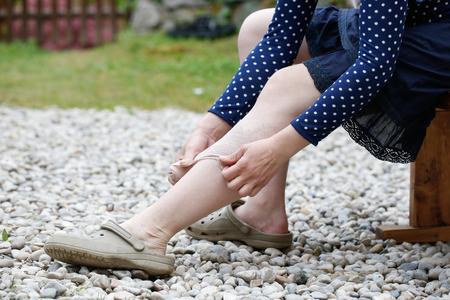 Femme avec varices douloureuses et les veines sur ses jambes, appliquer un bandage de compression, elle-même auto-aider. La maladie vasculaire, varices problèmes veines, condition médicale notion inesthétique douloureuse.