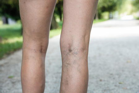 ulceration: Painful varicose and spider veins on womans legs, who is active and working out, self-helping herself in overcoming the pain. Vascular disease, varicose veins problems, active life concept.   Stock Photo