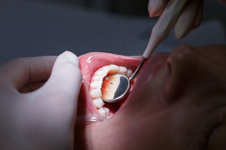 Patient at dentists office, getting her white teeth interdental spaces examined with hand-held mirror for tartar and plaque.?Dental hygiene, painful procedures and prevention concept.