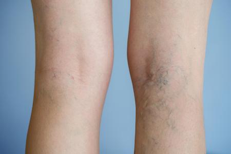 심각한 영향을받는 다리에 통증이 심한 정맥류 (거미 정맥류, 정맥류). 노화, 노년기 질환, 심미적 인 문제 개념. 스톡 콘텐츠