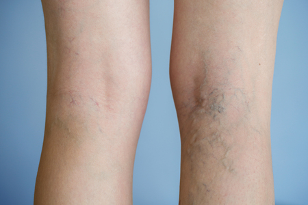 ulceration: Painful varicose veins (spider veins, varices) on a severely affected leg. Ageing, old age disease, aesthetic problem concept.