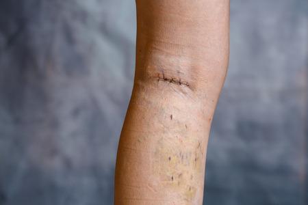 정맥류 수술 후 여자의 다리, 눈에 보이는 외과 적 봉합사 (스티치)와 다리에 상처가 있음. 치료 치료, 미적 절차, 혈전증 예방 및 노인 건강 관리 개념. 스톡 콘텐츠