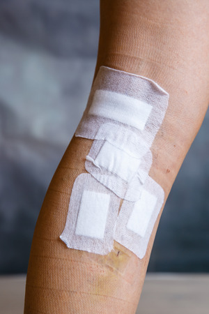 Bandages od womans leg after varicose vein surgery. Curative treatment, esthetic procedures, thrombosis prevention and senior health care concept.