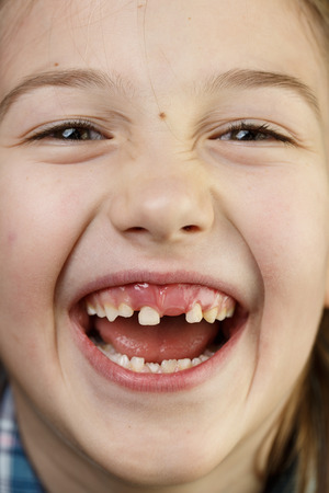 Little girl making faces, smiling, showing her loose and missing milk teeth. Playful, cheerful childhood, tooth fairy, growth and milestone concept.