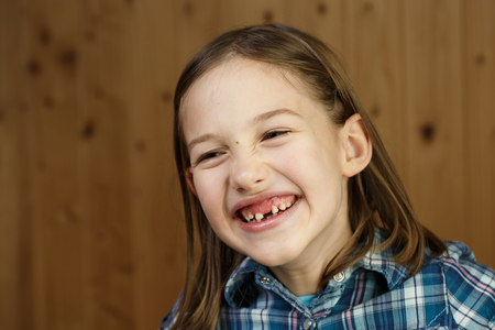 Little girl smiling, showing her loose and missing milk teeth. Playful, cheerful childhood, tooth fairy, growth and milestone concept. Stock Photo