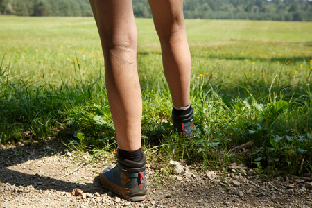 Woman with painful varicose veins on legs resting on a walk through nature. Varices, spider veins problems and active lifestyle prevention concept.