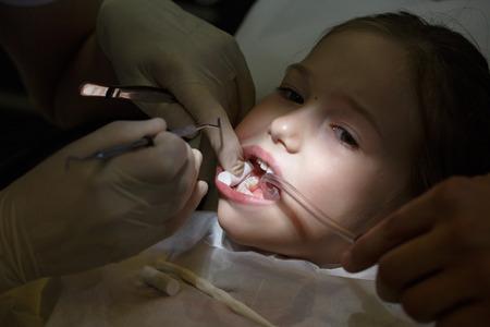 Bambina spaventata presso l'ufficio dei dentisti, dolorante durante un trattamento. Cure odontoiatriche pediatriche e paura del concetto di dentista.