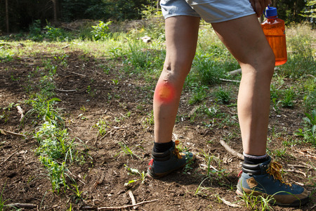 Woman with varicose veins on a hiking trip. Red dot effect. Imagens