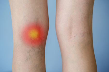 Krampfadern am Bein mit Rotpunkt-Effekt. Medizin, Gesundheitskonzept. Standard-Bild