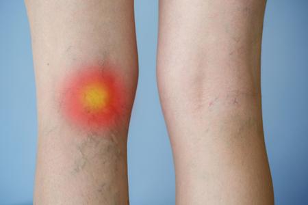 Vene varicose su una gamba con effetto punto rosso. Medicina, concetto di assistenza sanitaria. Archivio Fotografico