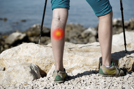 Frau mit Krampfadern auf einem Bein zu Fuß mit Trekkingstöcken. Rotpunkt-Effekt.