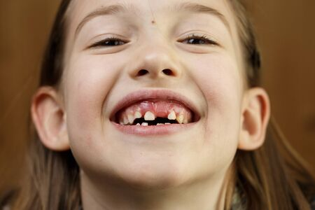 Little girl making faces, smiling, showing her loose and missing milk teeth. Playful, cheerful childhood, tooth fairy, growth and milestone concept. Banco de Imagens - 137697768