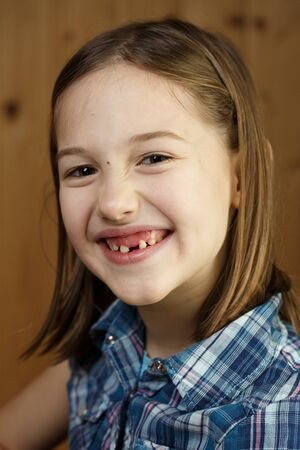 Little girl  smiling, showing her loose and missing milk teeth. Playful, cheerful childhood, tooth fairy, growth and milestone concept. Banco de Imagens - 137699597