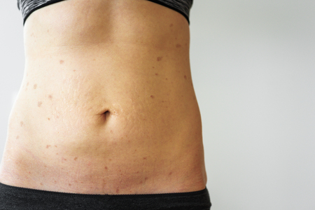 Woman belly with lichen planus, stretch marks. Fat loss