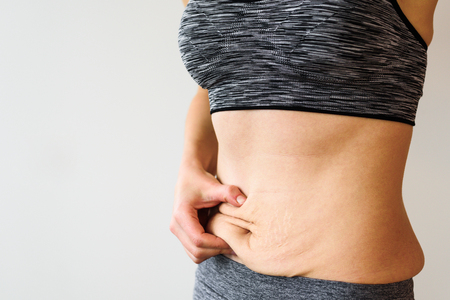 Woman belly after dieting. Skinny fat concept. Stretch marks