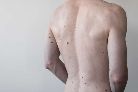 Male torso with a lot of moles, spine. athletic body