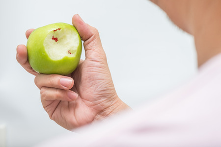 Asian man bite green apple and scurvy. blood on apple Stock Photo