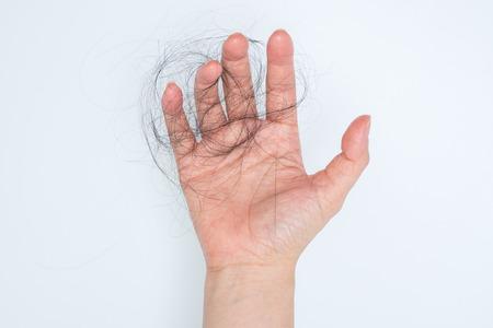 La pérdida de cabello en la mano de la mujer, sobre fondo blanco, las mujeres después del parto defluvium Foto de archivo - 43444606