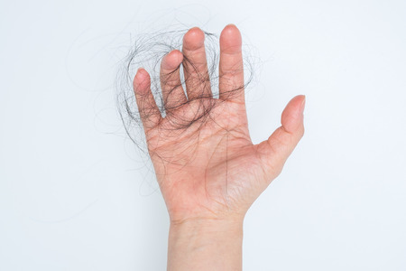 Hair loss in woman hand, on white background, women postpartum defluvium Archivio Fotografico