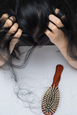 health woman: woman hair loss problem , she stress  looking on her hair loss in her hand