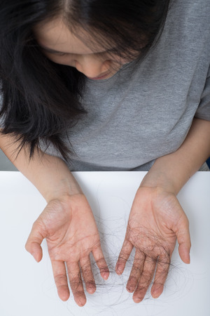 woman hair loss problem , she stress  looking on her hair loss in her hand