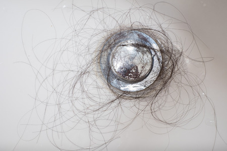 hair loss: Hair loss problem in white sink.