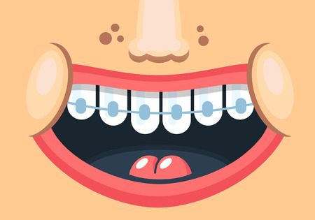 Drawn sweet smile of a child with braces. Vector illustration in a flat style.
