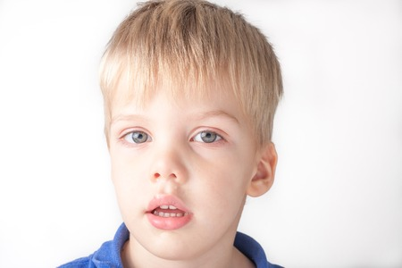 running nose: a portrait of a sick toddler boy with running nose and red eyes, isolated on white background
