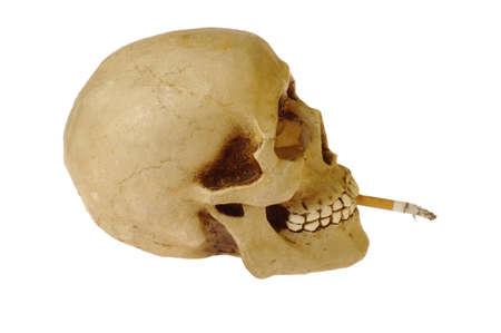 Skull with Cigarette photo