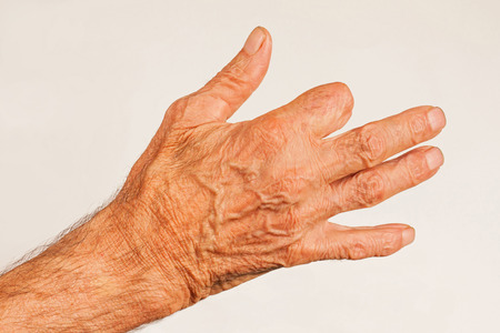 Elderly man hand with amputated finger on white background.