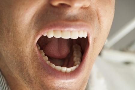 molares: Paciente dental masculino que muestra los dientes