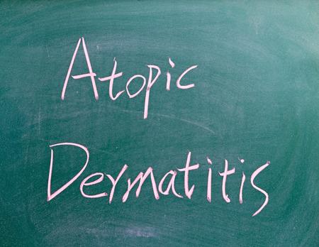 atopic: Atopic Dermatitis