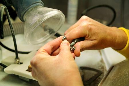 Dentures and dentistry. Dental prosthesis, dentures, prosthetics work. Dental technician in process of making dentures. Hands of dental technician processing metal oral prosthesis. Stomatology.