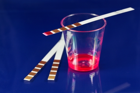 analyses: Test strip for chemical analyses. Stock Photo