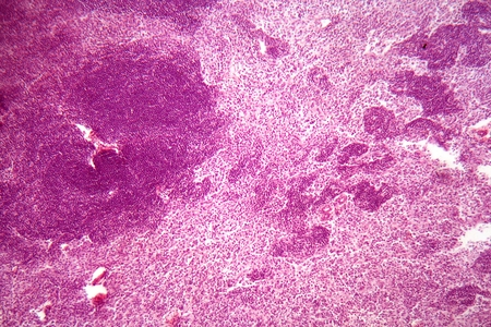 lymph: A section trough lymph node cells under the microscope.