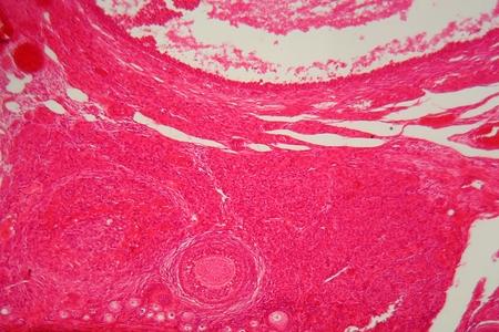 ovario: Una secci�n artesa c�lulas de ovario bajo el microscopio.