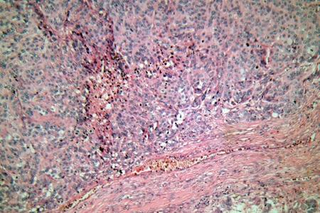 Cellen van een menselijke huid met melanoom (huidkanker) cellen onder een microscoop.